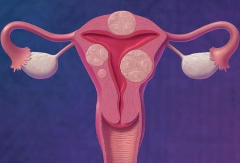 На 6 неделе беременности появились коричневые выделения