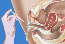 Сперма в женских влагалищах  238115